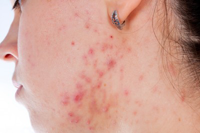 Looks Like Acne, But It's Not. | Acne and Skin Disorders Forum